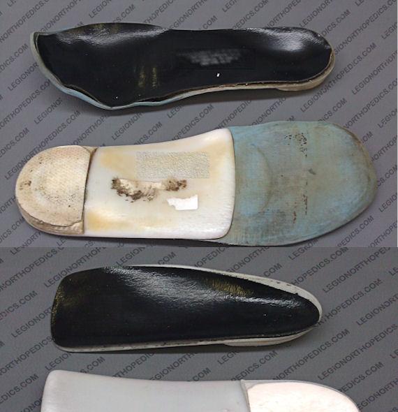 Custom Foot Orthotic Refurbish Service